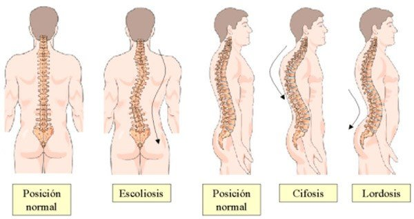 Posiciones columna vertebral
